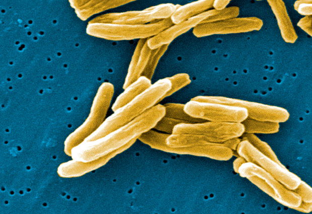 Tuberculosis remains a major global health concern: in 2013, an estimated 1.5 million people died from the disease. IMAGE: Janice Carr, Centers for Disease Control and Prevention